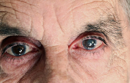tryck i ögonen
